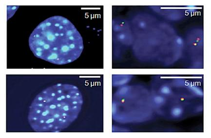 Fluorescence In Situ Hybridization with Hoxd13, GCR gene probe