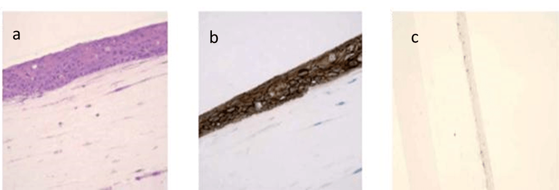 Histologic characterization of the 3D model of oral mucosa. (a) Morphologic characteristics (H&E staining). (b) Expression pattern of E-cadherin (immunohistochemical staining). (c) Expression pattern of Ki-67 (immunohistochemical staining).