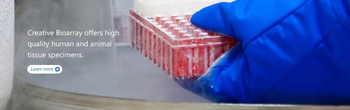 Creative Bioarray offers high quality human and animal tissue specimens